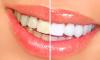tanden bleken trucje