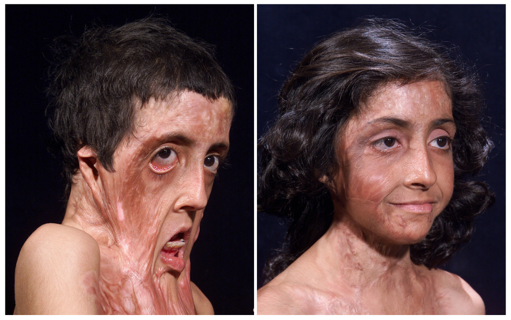 Картинки тело на стадии реконструкции