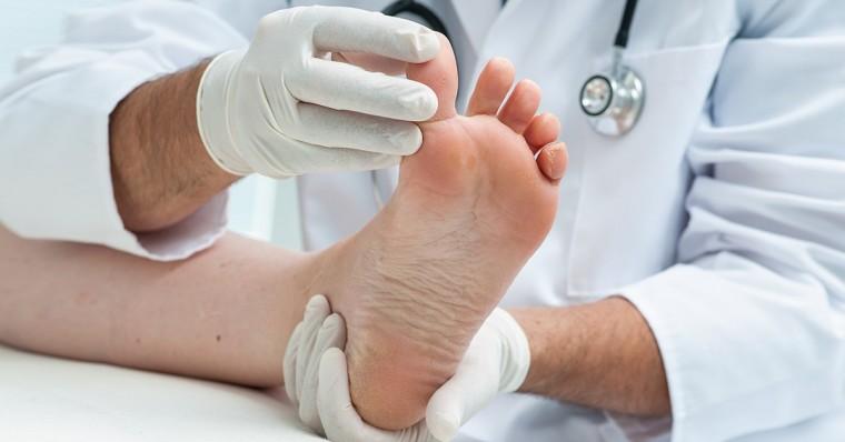 zweetvoeten-PediFris-voetklachten